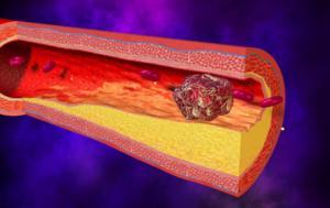 Артериальные тромбозы