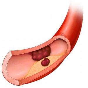 Сосудистый тромбоз после приема алкоголя и противозачаточных