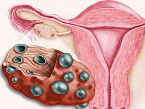 Гипертекоз яичников при гиперандрогении