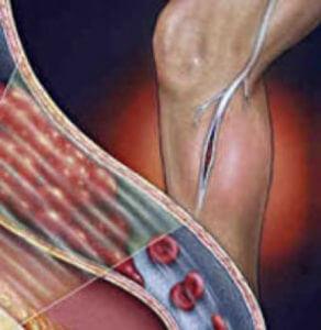 Антиандрогенные контрацептивы при склонности к тромбозам