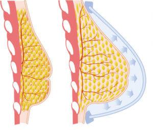 Увеличение грудных желез после кастрации