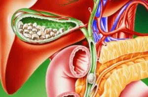 Прием клайры при желчнокаменной болезне