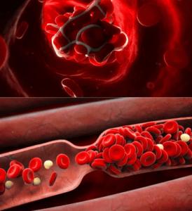 Противозачаточные таблетки при тромбозе