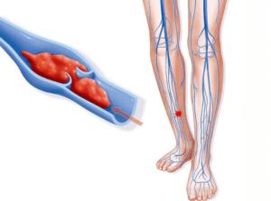 Противозачаточные при тромбозах