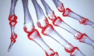 Контрацептивы при ревматоидном артрите