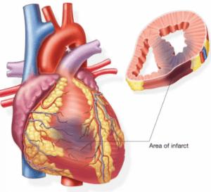 Прием таблеток после инфаркта