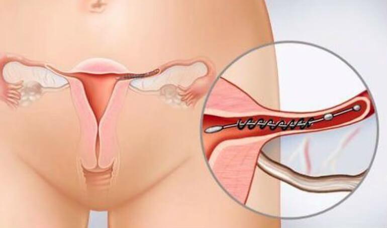 Перевязка труб матки