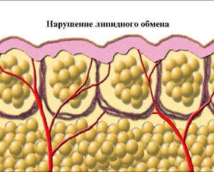 Нарушение липидного обмена в организме