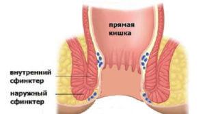 Прямая кишка со сфинкторами