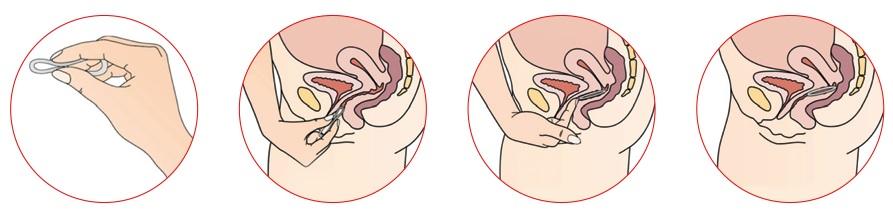 Инструкция по использованию противозачаточного кольца