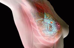 Подбор противозачаточных при мастопатии