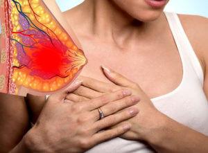 Боль в молочных железах у девушек до 30 лет