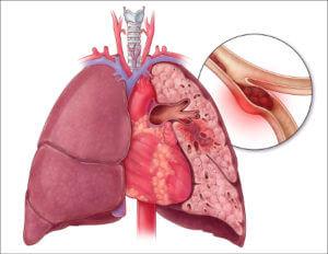 Тромбоэмболия при частом употреблении эстрогенов