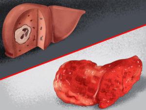 Контрацептивы с левоноргестрелом при печеночной недостаточности