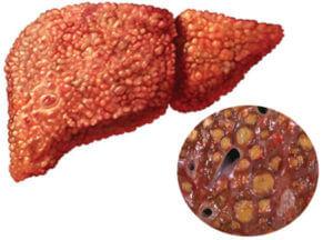 Прием препаратов на основе мифепристона при печеночной недостаточности
