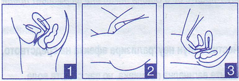 Инструкция по применения противозачаточного крема