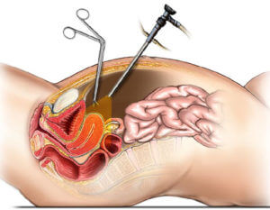 Лапароскопический метод стерилизации