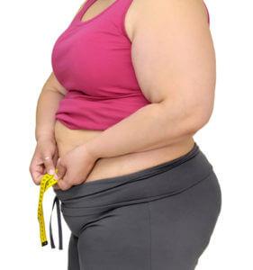 Стерилизация женщины при ожирении