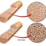 Развитие остеопороза после стерилизации