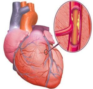 Прием гормональных средств при ишемической болезни сердца