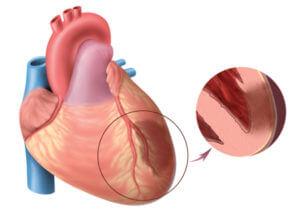 Прием ОК при инфаркте миокарда