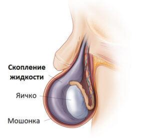 Скопление жидкости в яичке после вазэктомии