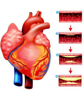 Ок при ишемии сердца