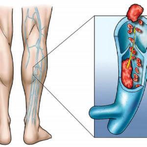 Прием противозачаточных при тромбозах