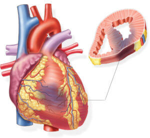 Противозачаточные после инфаркта миокарда