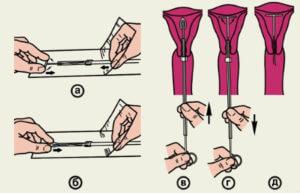 Пошаговая установка противозачаточной спирали Мирена