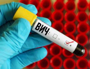 Внутриматочная спираль при наличии ВИЧ-инфекции