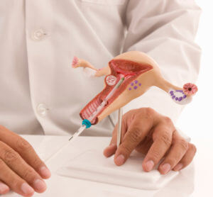 Установка противозачаточной спирали