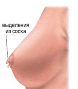 Выделения из молочной железы при приеме ОК